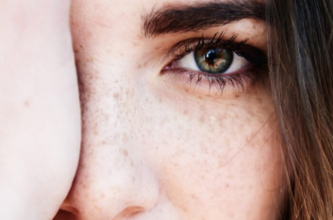 Get rid of those annoying dark circles by this!