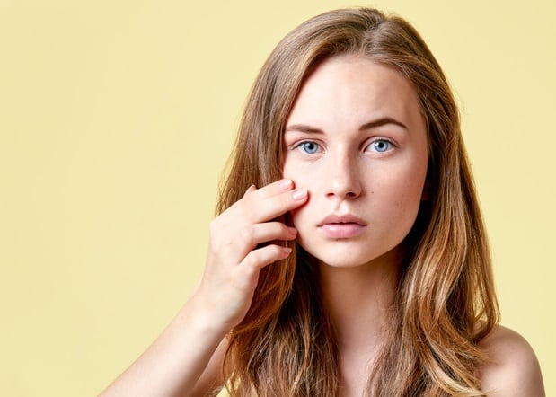 Acne: Everything you need to know