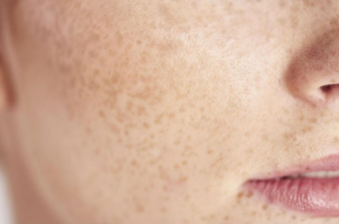 What is Freckle? Causes, Facts & Remedies